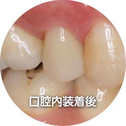 モリタ カタナアベンシアブロック ステップ 歯科情報ポータルサイト デンタルプラザ